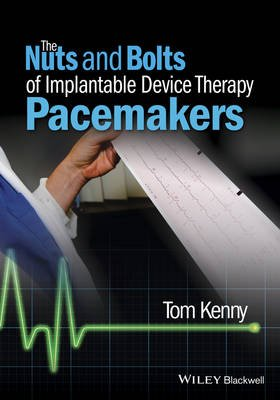 The Nuts and Bolts of Implantable Device Therapy - Pacemakers (Paperback): Tom Kenny