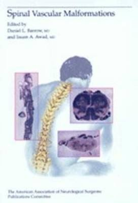 Spinal Vascular Malformations (Hardcover): Barrow