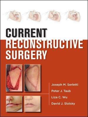 Current Reconstructive Surgery (Hardcover): Joseph M. Serletti, Peter J. Taub, Liza Wu, David J Slutsky, Joseph Losee