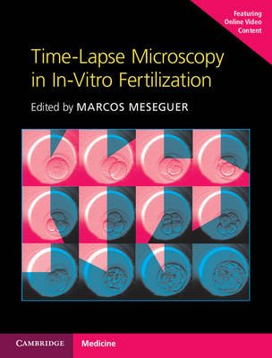 Time-Lapse Microscopy in In-Vitro Fertilization Hardback with Online Resource (Online resource): Marcos Meseguer