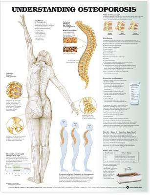 Understanding Osteoporosis Anatomical Chart (Wallchart, 4th): Anatomical Chart Company