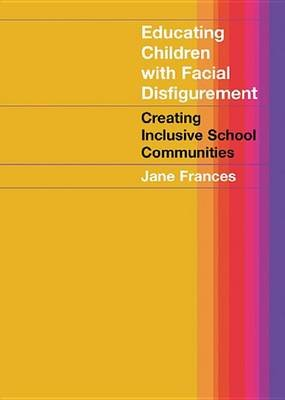 Educating Children with Facial Disfigurement - Creating Inclusive School Communities (Electronic book text): Jane Frances