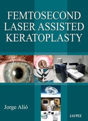 Femtosecond Laser Assisted Keratoplasty (Hardcover): Jorge L. Alio