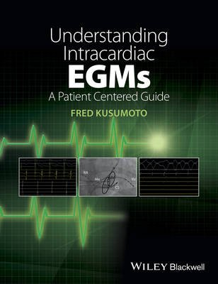 Understanding Intracardiac EGMs - A Patient Centered Guide (Paperback): Fred M. Kusumoto