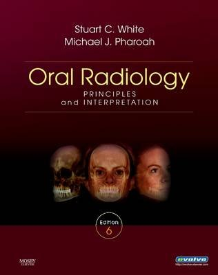 Oral Radiology - Principles and Interpretation (Electronic book text, 6th ed.): Stuart C. White, Michael J. Pharoah