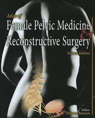 Atlas of Female Pelvic Medicine and Reconstructive Surgery (Hardcover, 2nd Revised edition): J.Thomas Benson
