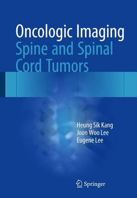 Oncologic Imaging: Spine and Spinal Cord Tumors (Hardcover, 1st ed. 2017): Heung Sik Kang, Joon Woo Lee, Eugene Lee