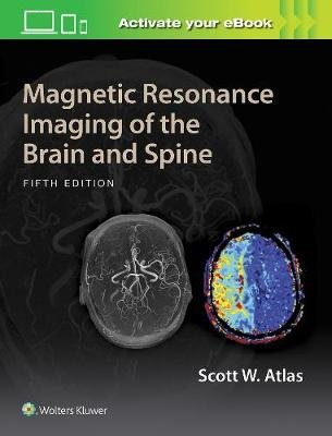 Magnetic Resonance Imaging of the Brain and Spine (Hardcover, 5th edition): Scott W. Atlas