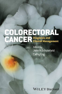 Colorectal Cancer - Diagnosis and Clinical Management (Hardcover): John H. Scholefield, Cathy Eng