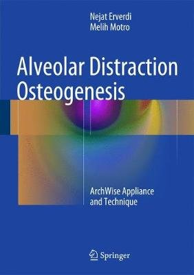 Alveolar Distraction Osteogenesis - ArchWise Appliance and Technique (Hardcover, 2015 ed.): Nejat Erverdi, Melih Motro