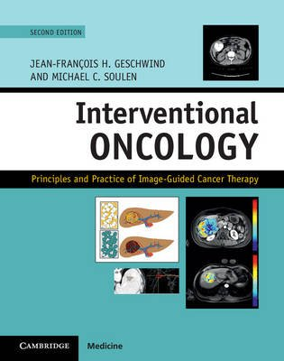 Interventional Oncology - Principles and Practice of Image-Guided Cancer Therapy (Hardcover, 2nd Revised edition):...