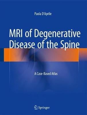 MRI of Degenerative Disease of the Spine - A Case-Based Atlas (Hardcover, 2015 ed.): Paola D'Aprile
