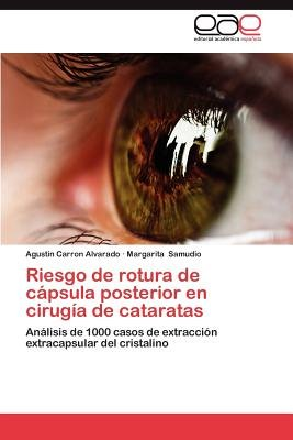 Riesgo de Rotura de Capsula Posterior En Cirugia de Cataratas (Spanish, Paperback): Agustin Carron Alvarado, Margarita Samudio