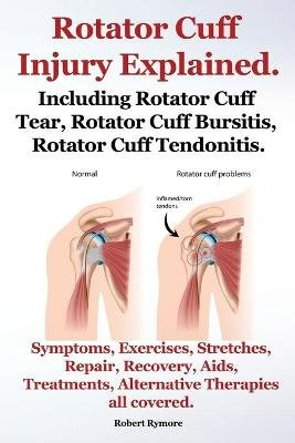 Rotator Cuff Injury Explained. Including Rotator Cuff Tear, Rotator Cuff Bursitis, Rotator Cuff Tendonitis. Symptoms,...