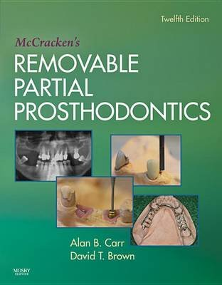 McCracken's Removable Partial Prosthodontics (Electronic book text, 12th ed.): Alan B. Carr, David T. Brown