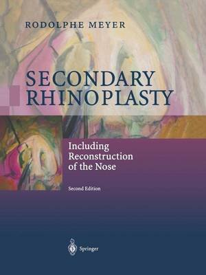 Secondary Rhinoplasty - Including Reconstruction of the Nose (Paperback, 2nd ed. 2002. Softcover reprint of the original 2nd...