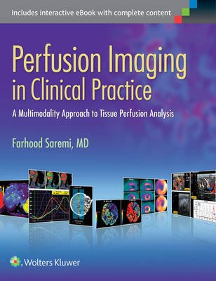 Perfusion Imaging in Clinical Practice - A Multimodality Approach to Tissue Perfusion Analysis (Electronic book text): Farhood...
