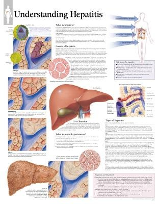 Understanding Hepatitis (Wallchart): Scientific Publishing