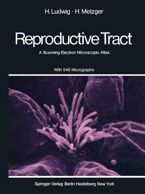 The Human Female Reproductive Tract - A Scanning Electron Microscopic Atlas (Paperback, Softcover reprint of the original 1st...