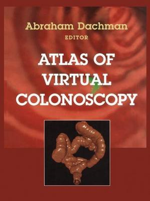 Atlas of Virtual Colonoscopy (Hardcover, Edition. ed.): Abraham H. Dachman
