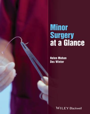 Minor Surgery at a Glance (Paperback): Helen Mohan, Desmond Winter