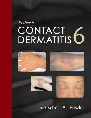 Fishers Contact Dermatitis (Electronic book text): Robert L. Rietschel
