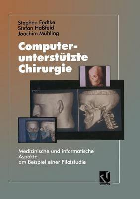Computerunterstutzte Chirurgie - Medizinische Und Informatische Aspekte Am Beispiel Einer Pilotstudie (German, Paperback,...