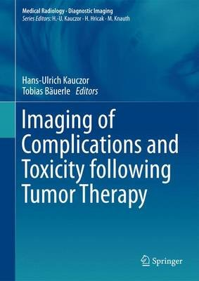 Imaging of Complications and Toxicity following Tumor Therapy (Hardcover, 1st ed. 2015): Hans-Ulrich Kauczor, Tobias Bauerle