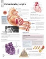 Understanding Angina Paper Poster (Poster): Scientific Publishing