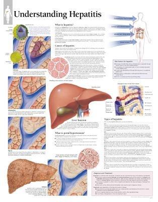 Understanding Hepatitis (Wallchart): Scientific Publishing