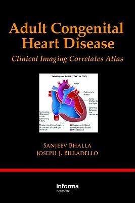 Adult Congenital Heart Disease (Hardcover): Bhalla Sanjeev