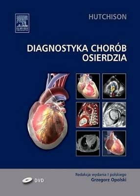 Diagnostyka Chorob Osierdzia (Polish, Electronic book text): Stuard Hutchison