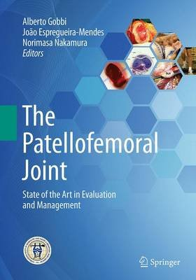 The Patellofemoral Joint - State of the Art in Evaluation and Management (Paperback, Softcover reprint of the original 1st ed....