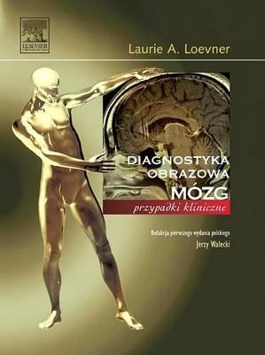 Mozg. Seria Diagnostyka Obrazowa Przypadki Kliniczne (Polish, Electronic book text, 2nd ed.): Laurie Loevner