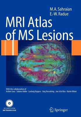 MRI Atlas of MS Lesions (Paperback): M. a. Sahraian, Ernst-Wilhelm Rad
