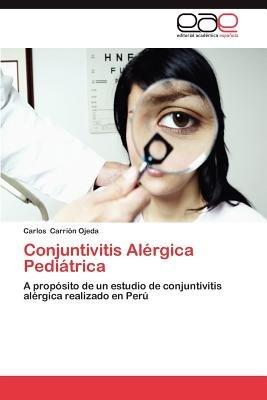 Conjuntivitis Alergica Pediatrica (Spanish, Paperback): Carlos Carri N., Carlos Carrion