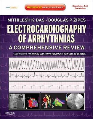 Electrocardiography of Arrhythmias: A Comprehensive Review - A Companion to Cardiac Electrophysiology (Electronic book text):...